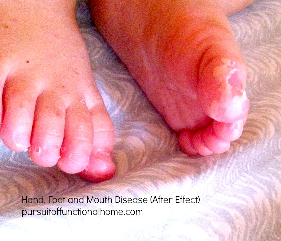 Baby with HFMD pictures, hand foot and mouth on baby